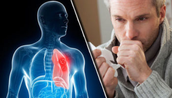 Як вигнати слиз і мокроту з горла і грудей: 5 засобів, які працюють