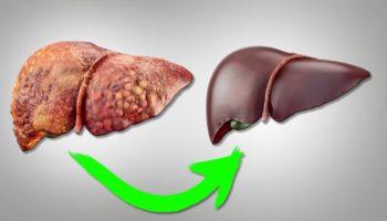 Як відновити печінку і позбутись зайвої ваги лише за 30 днів